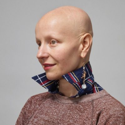 Being Bald Is My Superpower